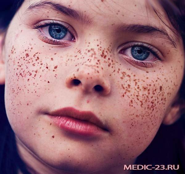Остерегайтесь меланомы