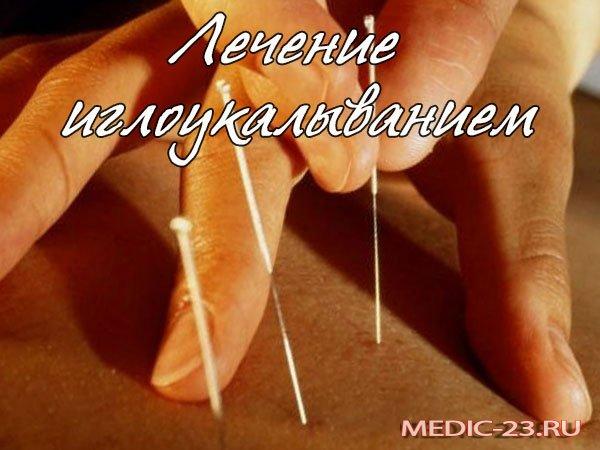 Лечение иглоукалыванием