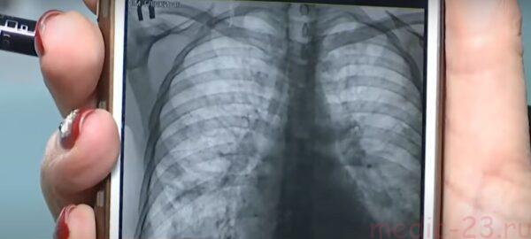 снимок легких с пневмонией